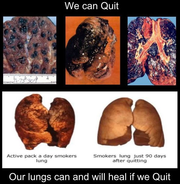 We can quit - Our lungs can and will heal if we quit smoking