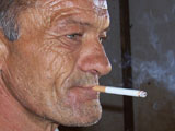 Smoker with wrinkles all over face